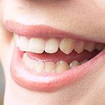 smile-150